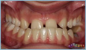 çapraz-kapanış-crossbite-ortodontik-problemler