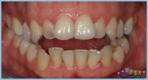 ön-dişlerde-açık-kapanış-ortodontik-problemler