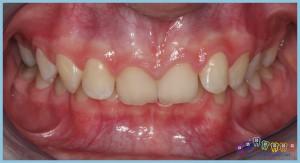 örtülü-derin-kapanış-deepbite-ortodontik-problemler