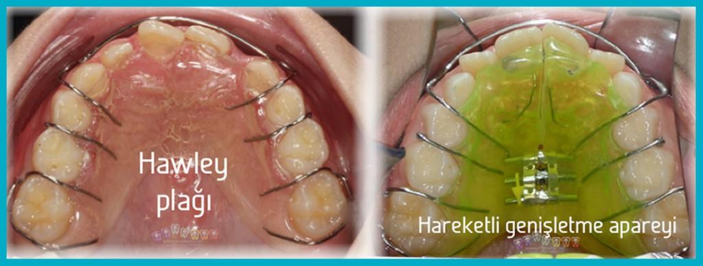 HAreketli-ortodontik-tedaviler-bölümüne-hawley-plağı-