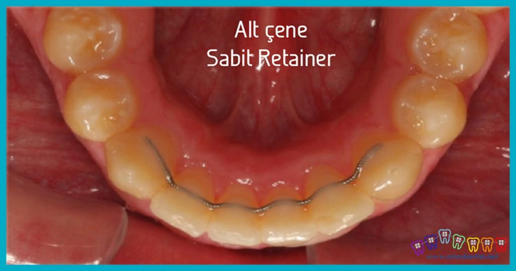alt-çene-retainer-