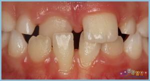 dişler-arası-boşluk-deastema---ortodontik-problemler