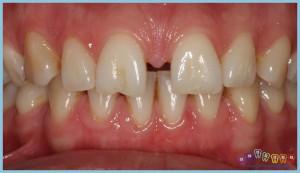 dişler-arası-boşluk-ortodontik-problemler-ortognatik-cerrahi