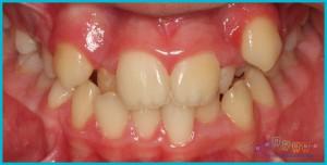 dişlerde-çapraşıklık - ortodontik-problemler-1