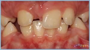 eksik-dişler-ortognatik-cerrahi-ortodontik-problemler