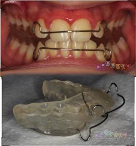hareketli ortodontik tedaviler