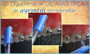 diş arası fırçası kullanımı ortodontik tedavi ortodontist
