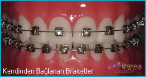 kendinden bağlanan braketler ortodontik tedavi diş teli