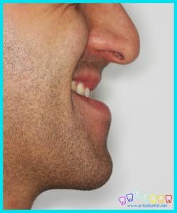 alt çene önde ortognatik cerrahi ortodontist