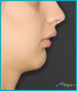 alt çene geride ortognatik cerrahi ortodontist