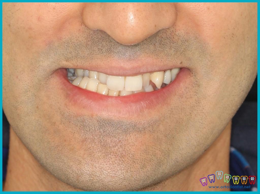 yüz-asimetrisi-üst-çene-alt-çene-uyumsuzluğu - ortodontist