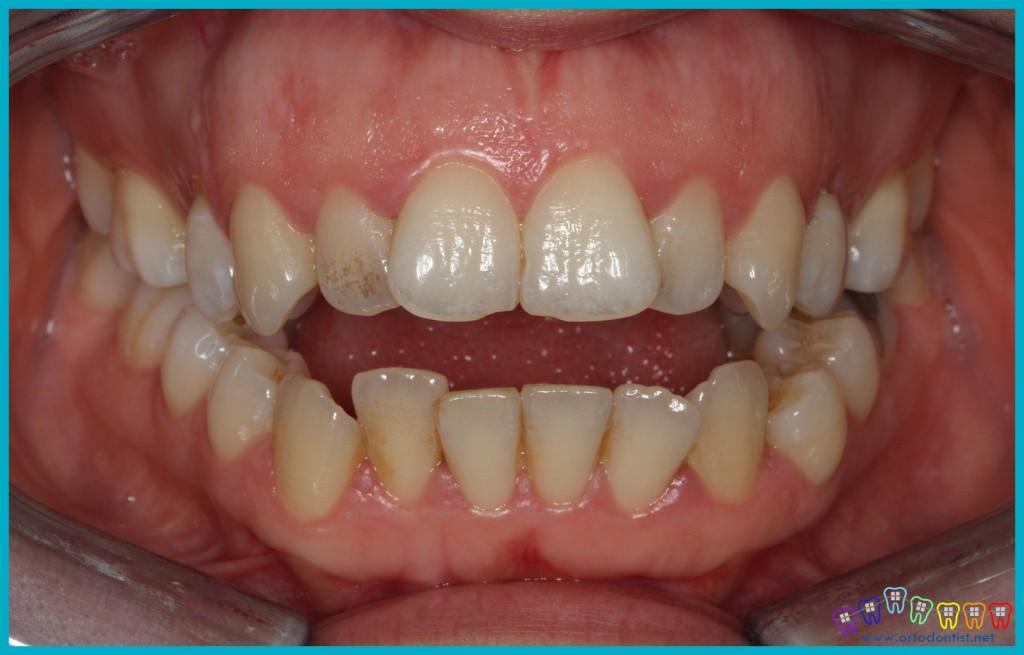 dişler arası açıklık ortognatik cerrahi